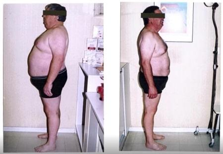 Perdre la graisse abdominale du ventre grâce aux compléments alimentaires